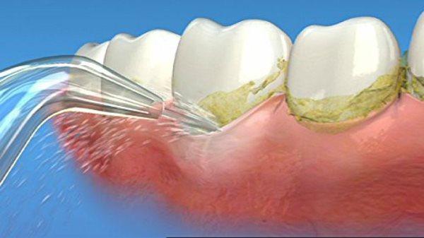 Как очищает зубы ирригатор