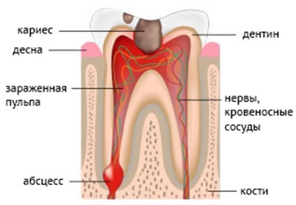 вырвали 2 зуба появился запах изо рта