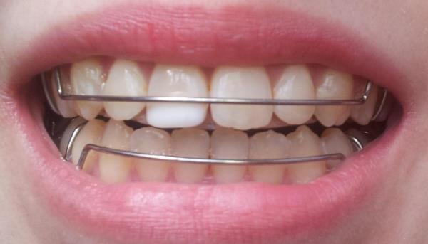 Зачем носить ретейнеры после безлигатурных брекетов
