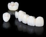 Какова цена циркониевой коронки на передний зуб