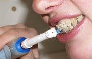 Какая электрическая зубная щетка подходит для брекетов