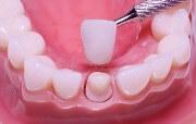 Где найти отзывы о керамических коронках на зубы