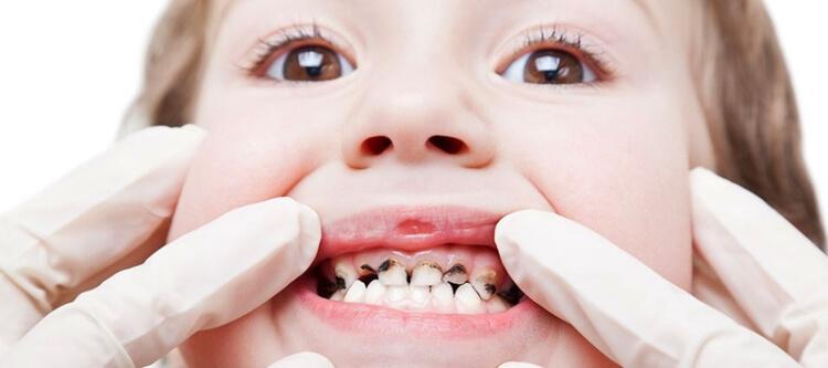 Принципы лечения кариеса молочных зубов