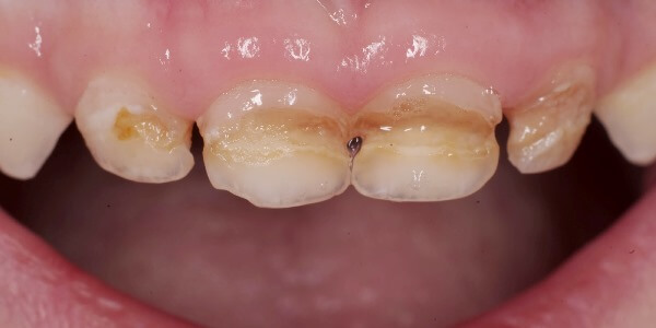 Как лечить циркулярный кариес молочных зубов