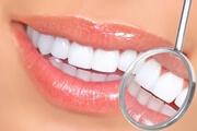 Средняя цена наращивания эмали зубов