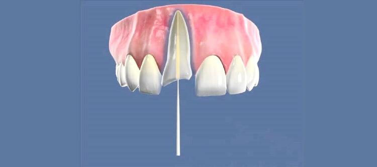 Как происходит наращивание зуба на штифт