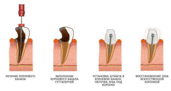 Как происходит процесс наращивания зуба на штифт