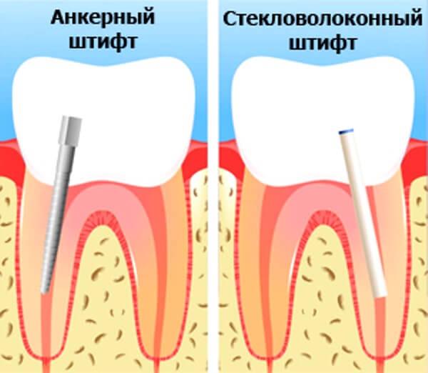 Какие виды штифтов используют для наращивания зуба