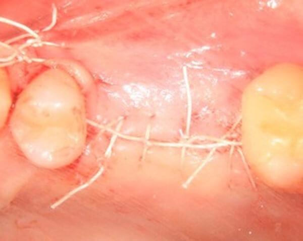 Чем чревато расхождение швов после имплантации зубов