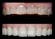 Абсцесс зуба: причины возникновения, лечение, профилактика