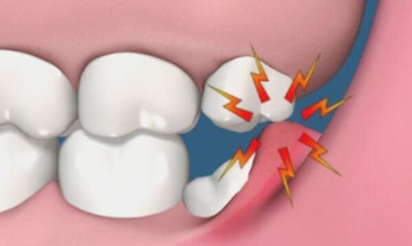 Как происходит травмирование тканей при перикоронарите
