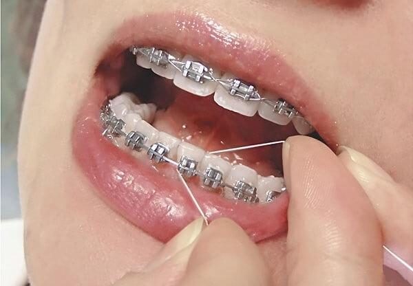 Использование зубной нити для брекетов