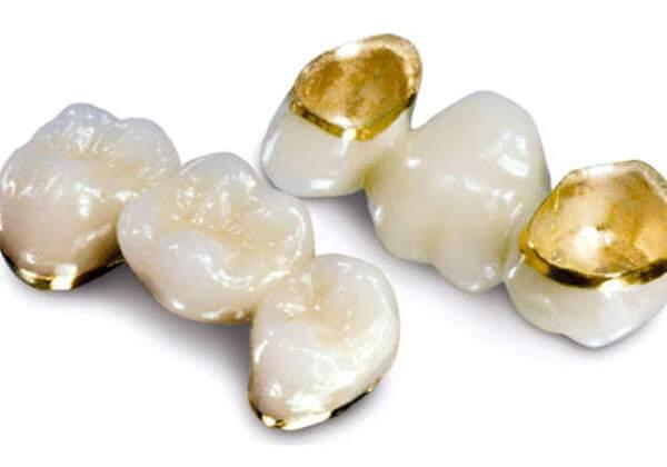 Изготовление металлокерамических коронок из золота