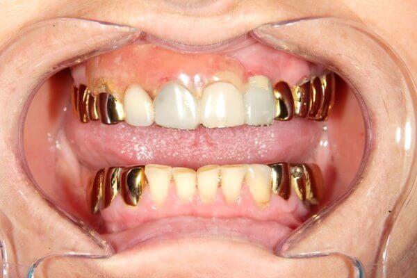 Как выглядят коронки из золота в ротовой полости