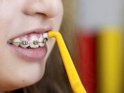 Какую ортодонтическую зубную щетку лучше купить для чистки брекетов