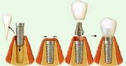 Стандартные этапы имплантации зубов