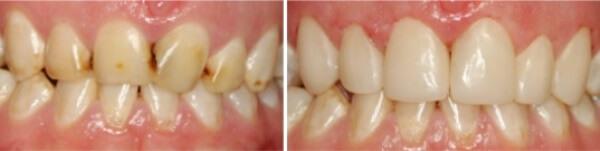Какие методы терапии эффективны при флюорозе зубов