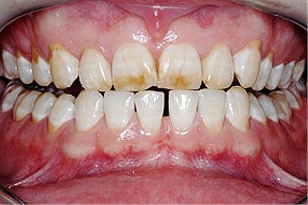 Диагностика флюороза зубов