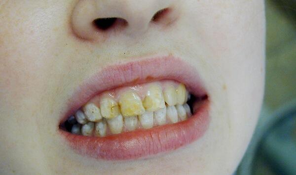 Какие формы различают при флюорозе зубов