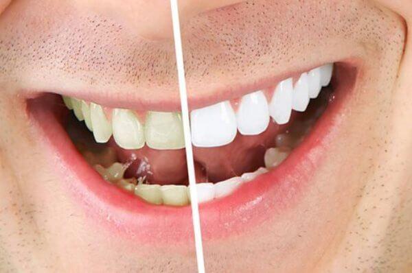 Насколько эффективно отбеливание зубов лимоном