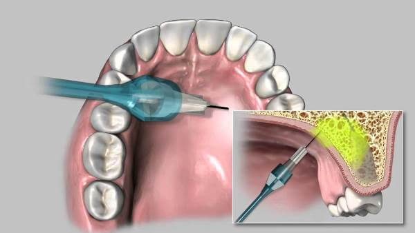 Как проводится небная анестезия