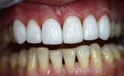 Как быстро восстановить эмаль зубов