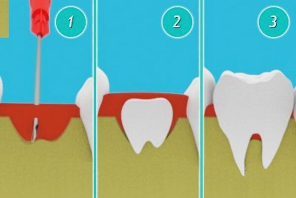 Метод подсаживания стволовых клеток для выращивания зуба