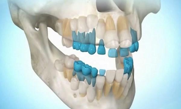 Последовательность выращивания зуба