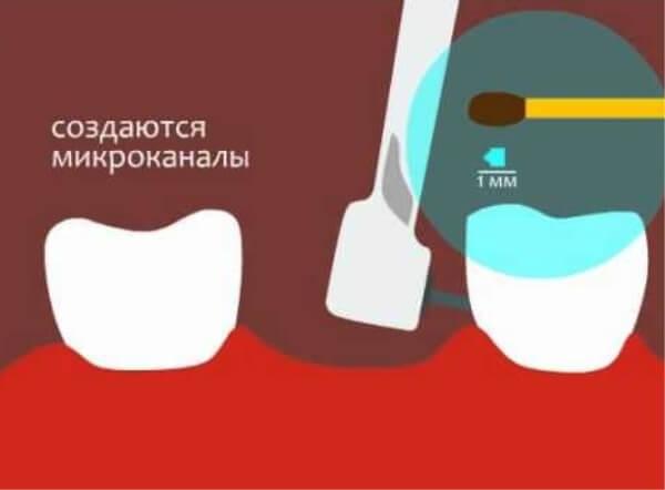 Процедура высверливания микроканалов для CBW протезирования