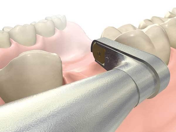 Порядок установки микрозамков для CBW протезирования