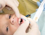 Для чего проводится фторирование молочных зубов у детей