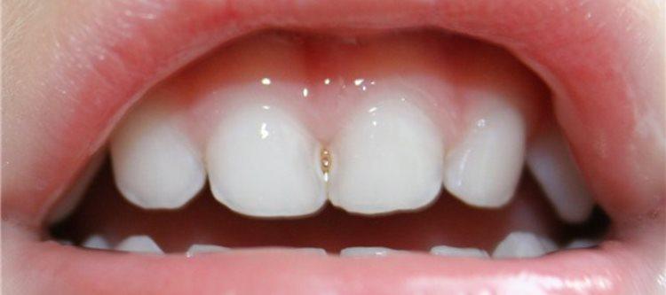 Как выглядит кариес между передними зубами