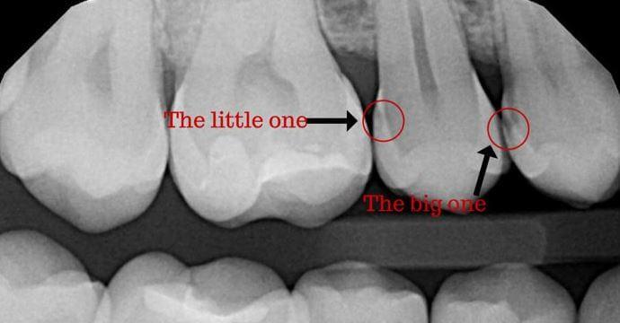 Как виден кариес между передними зубами на рентгеновском снимке