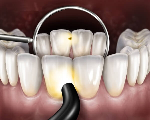 Как диагностировать кариес между передними зубами