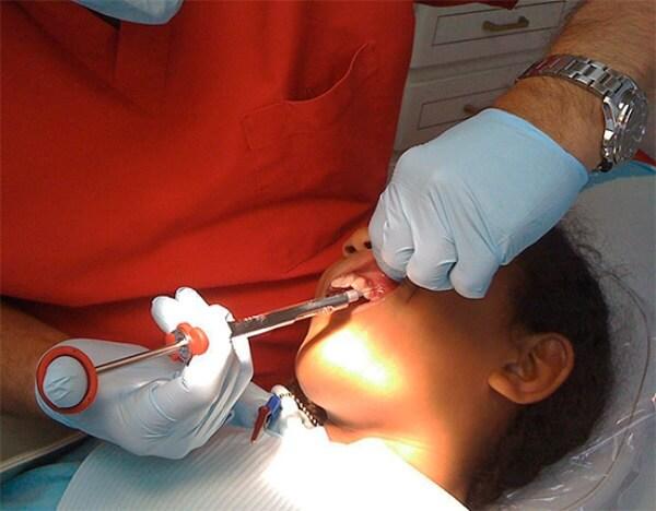 Проведение анестезии при лечении глубокого кариеса