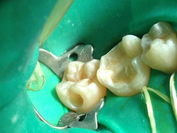 Какие препараты используют для лечения если болит зуб