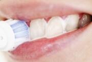 Способы отбеливания зубов содой и перекисью водорода