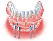 Особенности зубных покрывных протезов