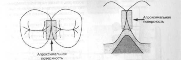 как вылечить зуб, когда сложная история болезни