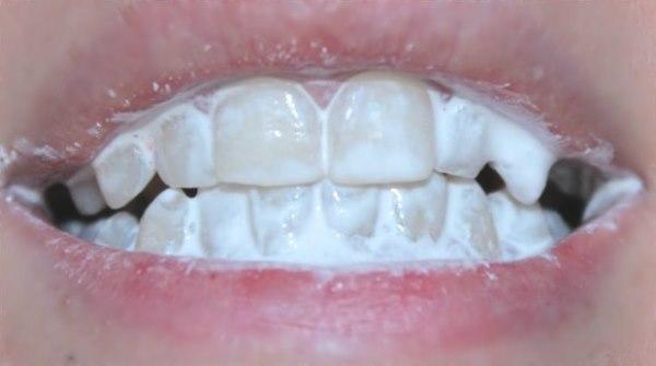 Как делать аппликации из зубного порошка