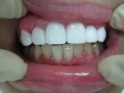 Средняя цена винира на передний зуб