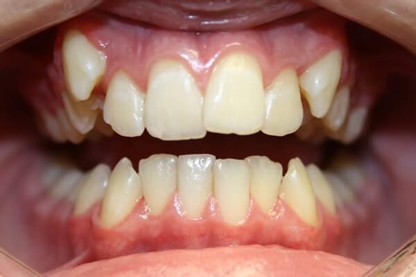 Как выглядит вертикальное смещение зубов