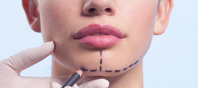 Что понимают под хирургическим исправлением прикуса