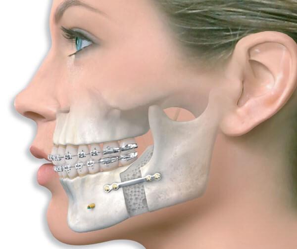 Какие методы коррекции используются при хирургическом исправлении прикуса