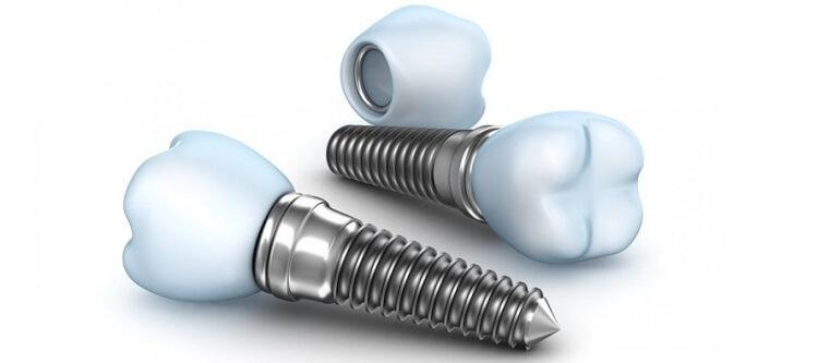 Противопоказания для установки имплантов зубов, вред, отзывы