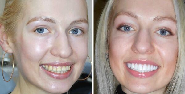 Методы выравнивания зубов винирами