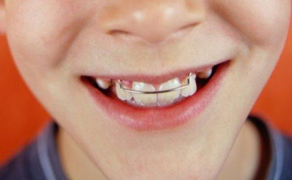 Выравнивание зубов пластинами у детей