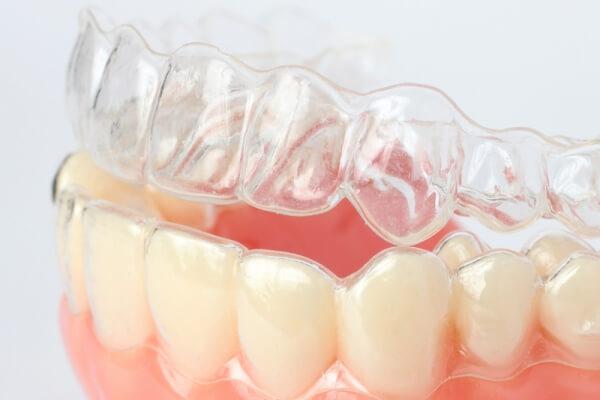 Особенности выравнивания зубов капами