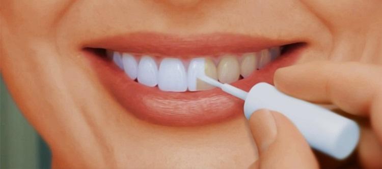 капа для отбеливания зубов цена
