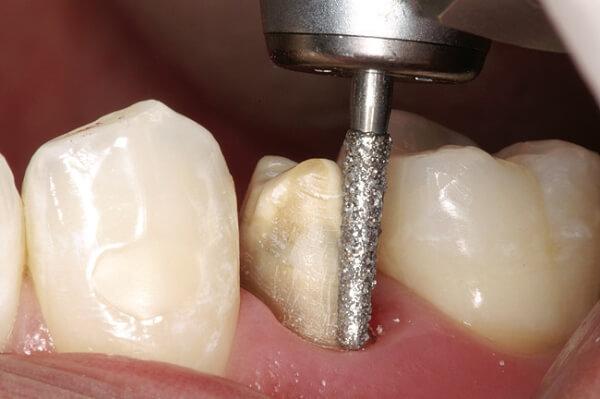 Как проводится обточка зуба под металлопластмассовую коронку
